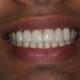 San Jose Dentist Patient Testimonials
