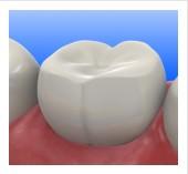 San Jose Dentist Composite Filling