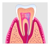 San Jose Dentist Root Canal