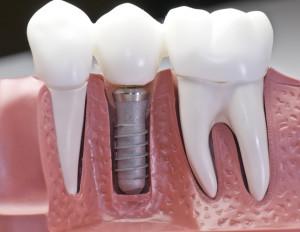 San Jose Dentist Dental Implants