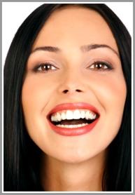 San Jose Dentist Teeth Whitening