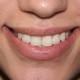 Dr Mangat Patient Testimonial Mangat Dental Center