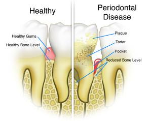 San Jose Dentist Deep Cleaning Gum Disease