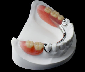 San Jose Dentist Partial Dentures