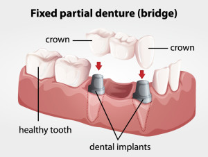 San Jose Dentist Implant Bridge