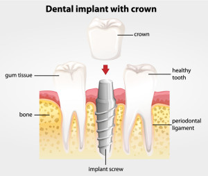 San Jose Dentist Implant Crown