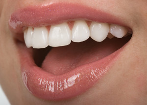 San Jose Dentist Veneer Smile