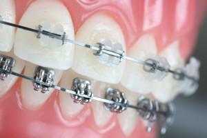 San Jose Dentist Orthodontic Braces