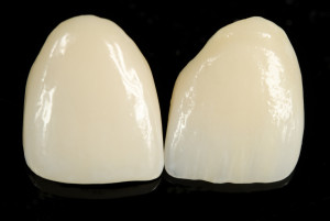 San Jose Dentist Veneers