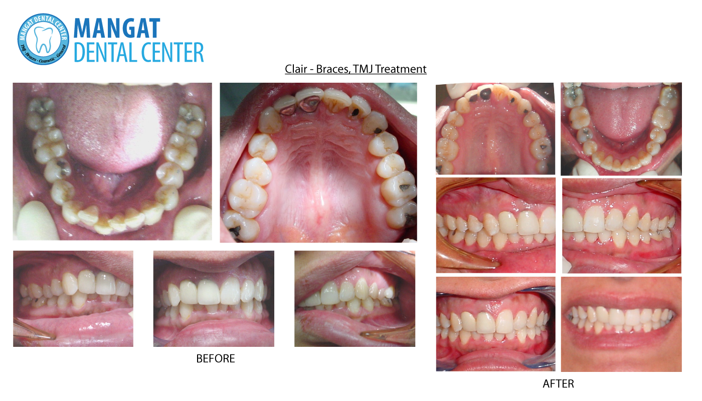 tmj treatment tmj braces