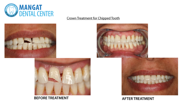 Treatment for Chipped Teeth