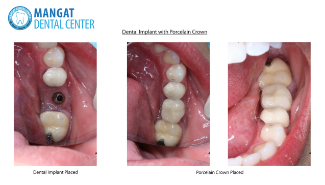 Dental Implant with Porcelain Crown